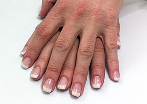EFTER behandling: Återbesök, nagelförlängning
