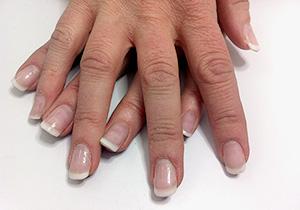 FÖRE behandling: Återbesök efter 5 veckor, nagelförlängning
